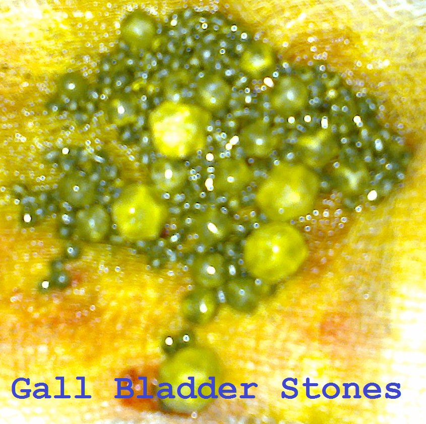Gall Bladder Stones