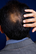 5 Preventing Grey Hair and Hair thinning treatment For LOVERS