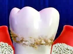 Scaling: membersihkan karang gigi