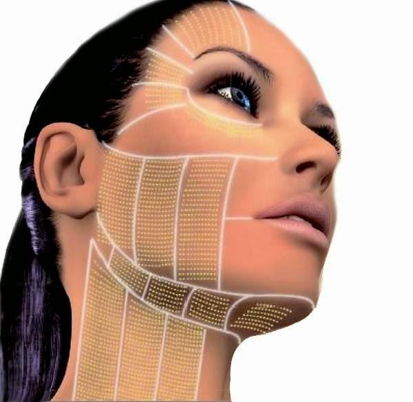 Ultherapy 極線音波 音波拉皮 適用範圍
