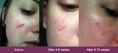 mederma before and after face scar