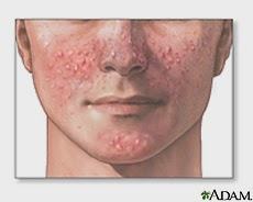 there are a number of different types of acne knowing what type can help find the cause and how to treat it effectively acne excoriee