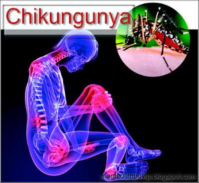 Remedios Naturales para el Chikungunya