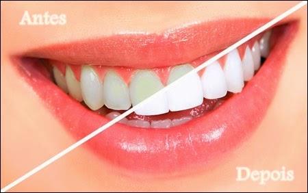 Dentes Brancos Naturalmente **com a ajuda dos alimentos**