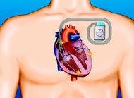 Meno di un centimetro è la misura del defibrillatore più piccolo al mondo.