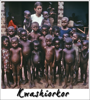 Kwashiorkor adalah malnutrisi akibat kekurangan Protein