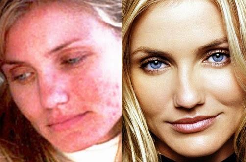 Bb la crema por el acné