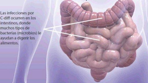 Infección Intestinal