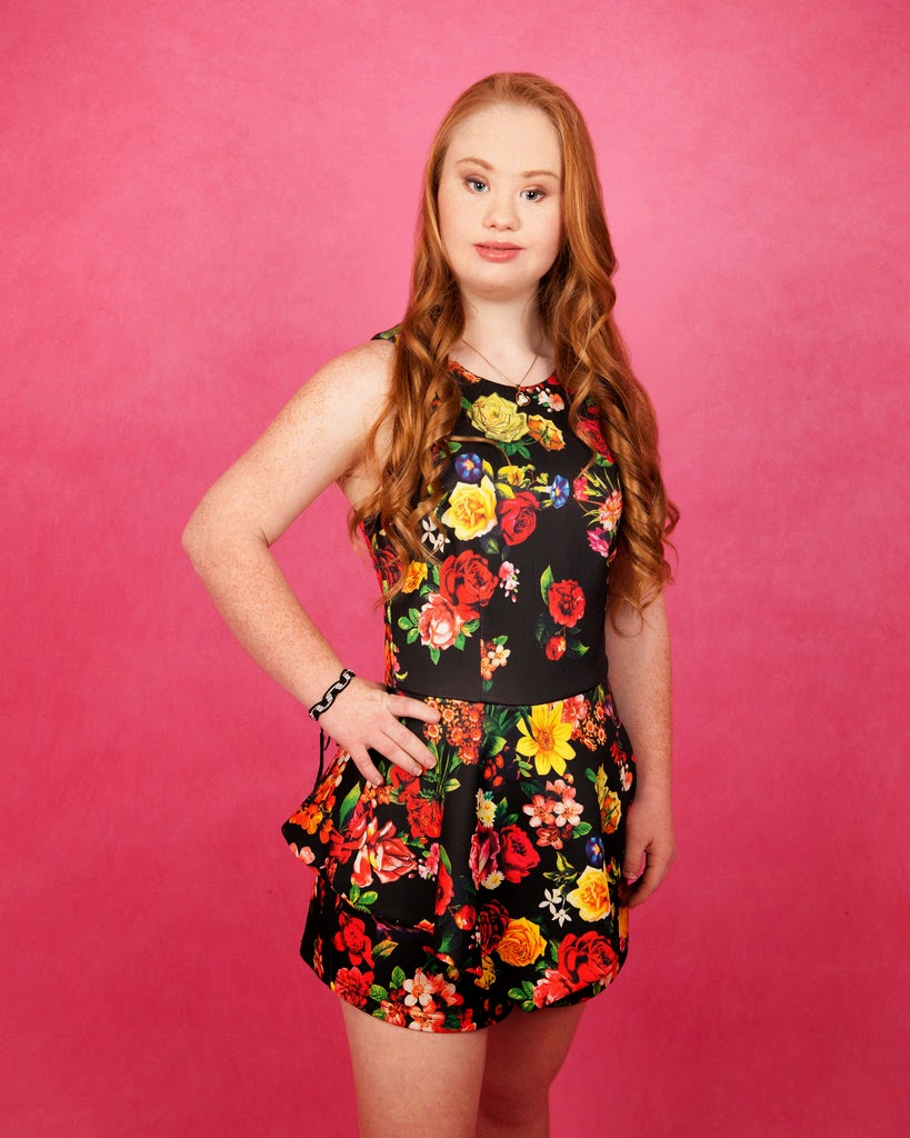 Australian Model With Down Syndrome
