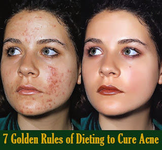 7 Golden Rules of Dieting to Cure Acne