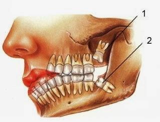 لماذا اطلق على ضرس العقل هذا الاسم  - ضروس اسنان فك الانسان - دروس