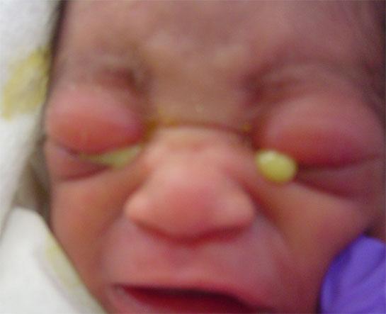 принципе у грудничка с рождения гноятся глазки детальнее