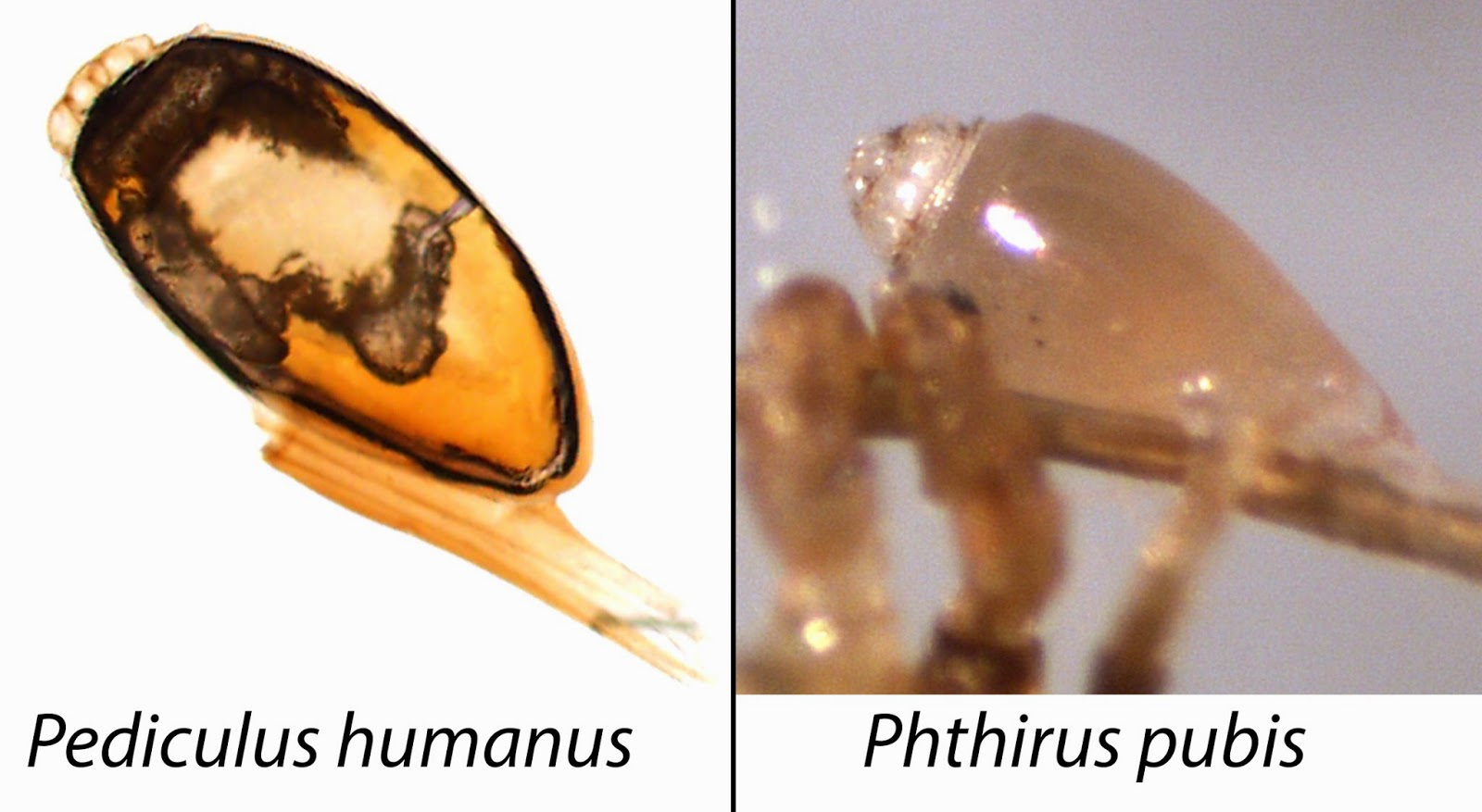 Head Lice Pictures Actual Size Nature of head lice,