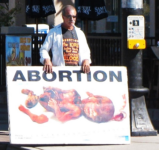 pictures of aborted babies