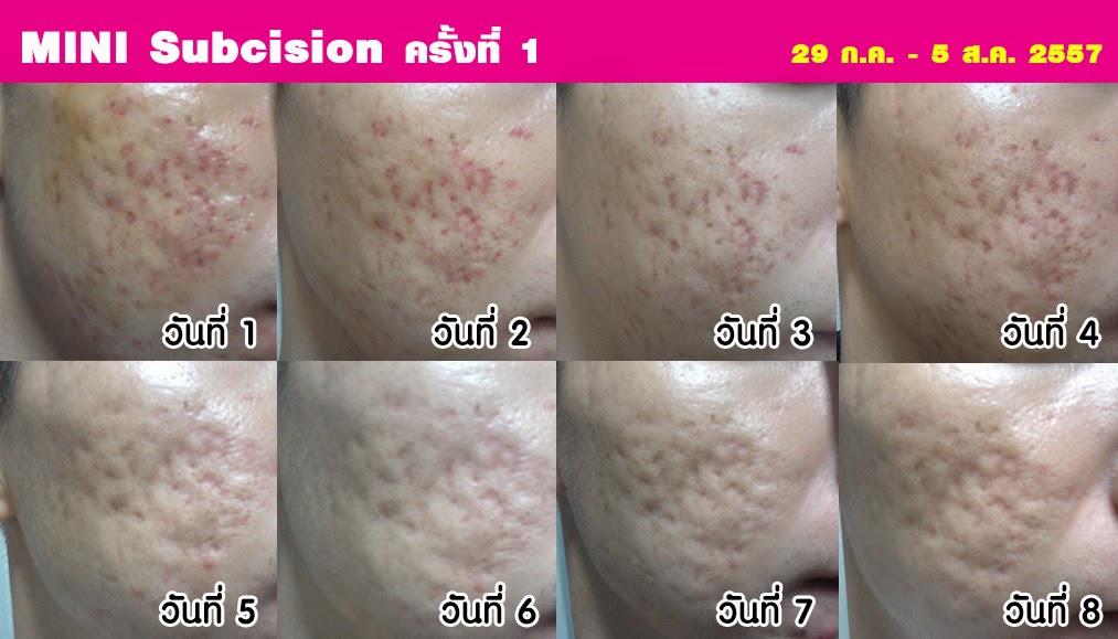 Review ทำ Mini subcision + VIPL ที่นิติพลคลินิก ครั้งที่1
