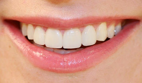 Teeth whitening bleaching and dental care by dentist in Bellevue WA