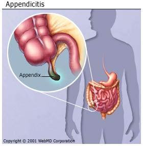 Herbal Medicines For Diverticulitis Ulcers, and Appendicitis
