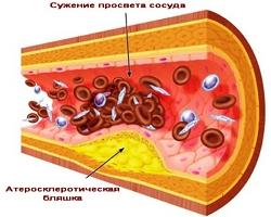 таблетки от холестерина название 145 мгц
