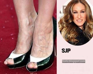 +Ugly feet celebrities+(5) Ugly Feet Of The Celebrities