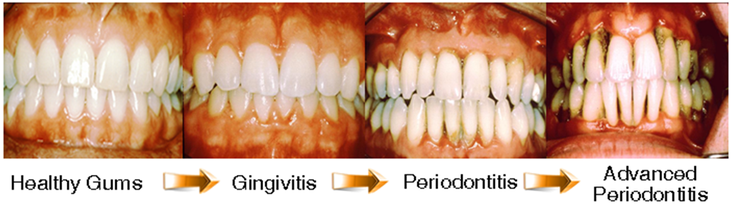 Gum Disease Receding Gums Treatments And Causes