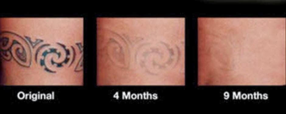 7 removing tattoo at home dynarex product tikki for Tattoo removal maine