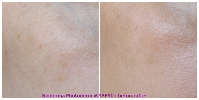 Bioderma_Photoderm_M_SPF50+_before_after_review_opinie_01