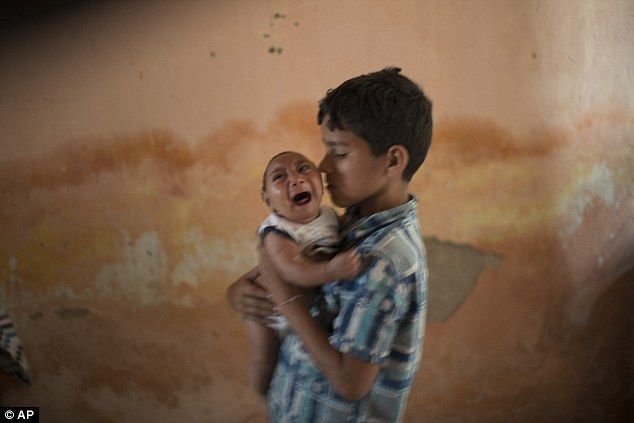 Zika Virus Child Pictures