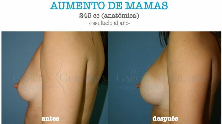 mamoplastia_aumento_madrid