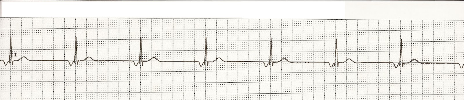 Float Nurse Ekg Rhythm Strips 14 Junctional Rhythms