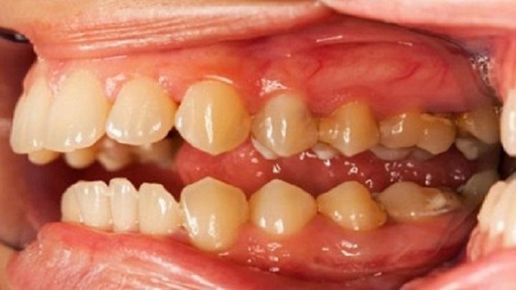 فاكهة تقضي نهائيا على تسوس الأسنان والتهاب اللثة