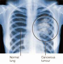 سرطان الر ئة