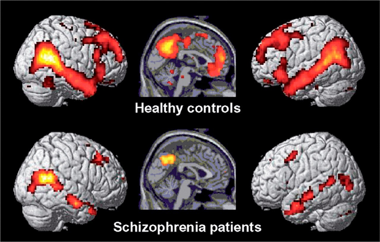 an overview of the disease schizophrenia a debilitating mental disorder Study finds debilitating mental illness results from distinct clusters of gene  variations, not a single gene.