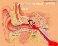 Obat Sakit Radang Telinga Tradisional