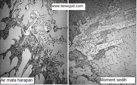 Perubahan Bentuk Air Mata dilihat dengan Mikroskop