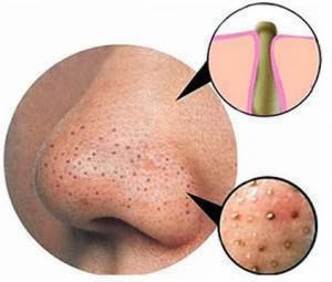 5 Best Homemade Face Mask to Remove Blackheads