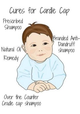 Baby Cradle Cap Cures