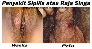 Gejala Penyakit Sipilis  Pria Dan Wanita