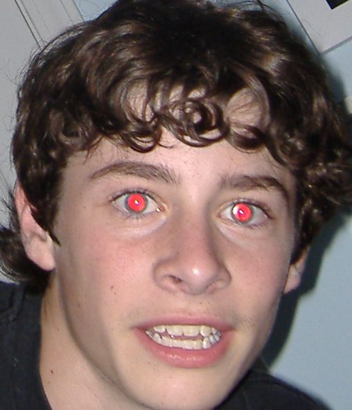 Images For Red Eye Removal