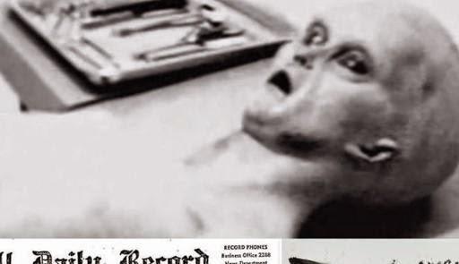 Foto Autopsi Alien Diklaim Asli By Bulan Ramadlan