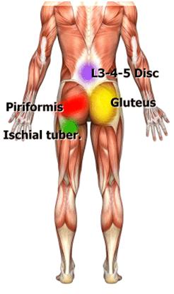 PHYSIOFIT: Ischias (Ischiasschmerzen, Ischialgie)