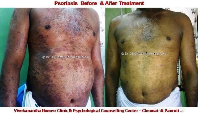 soriasis, sariasis, soruasis, psoriasis, psoreases, tholl noi, dhol diseases, dhol noi.