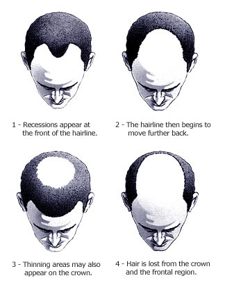 Alopecia Baldness on Androgenetic Alopecia Better Known As Male Pattern Baldness Is A Fact