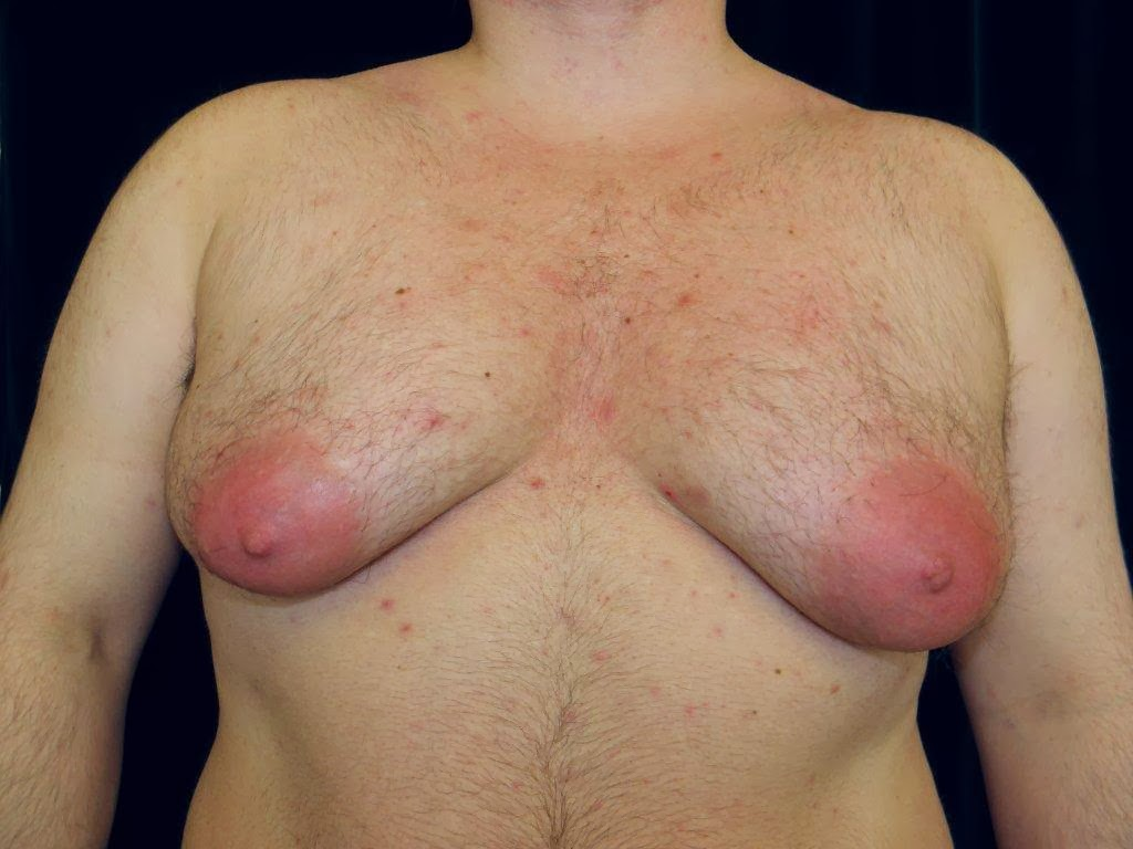 hormone breast enlargement for males