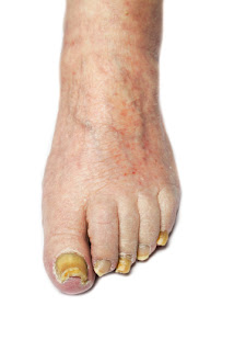 toenail fungus foot treatment