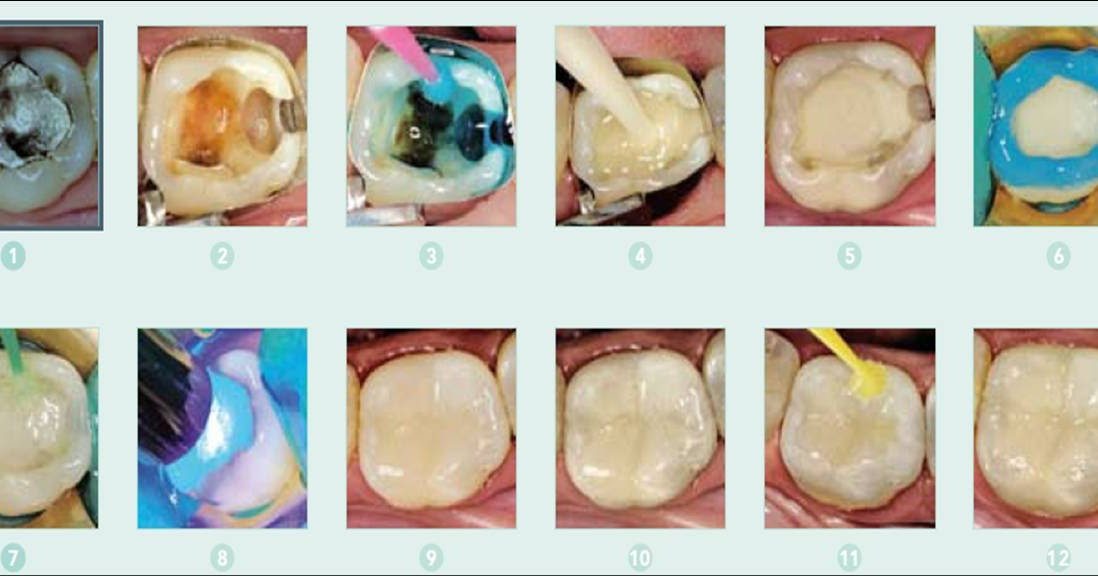 "Dental materials: Glass Ionomer - Composite ""sandwich"" technique: when is the time to etch?"