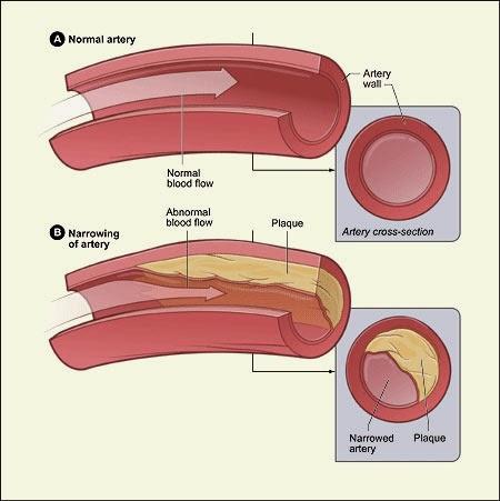 Bahaya Plak Kolesterol shaklee
