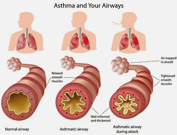 Keadaan paru-paru pesakit asma