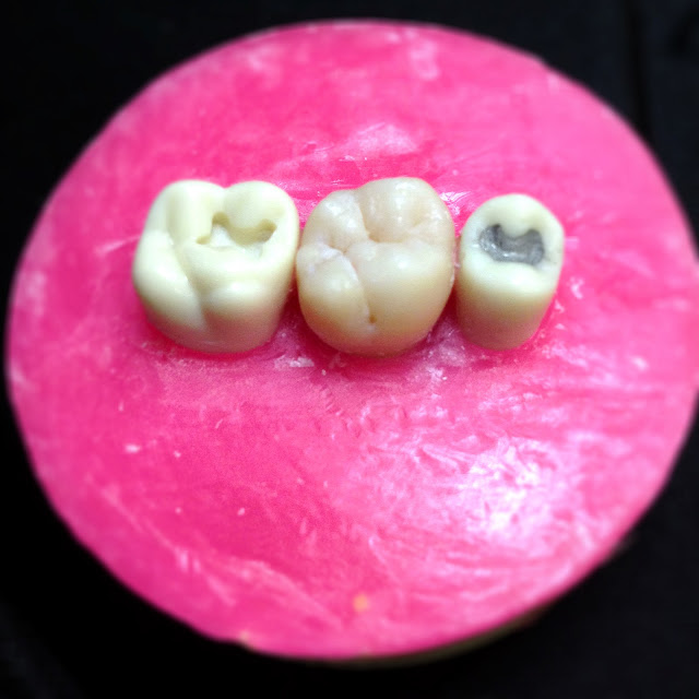 dental school tooth block