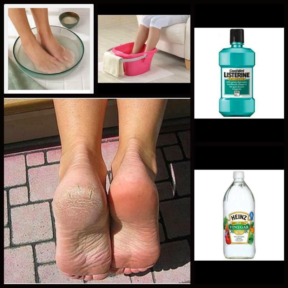 cuales son los niveles normales de acido urico en el organismo humano calabacin y acido urico acido urico o urea
