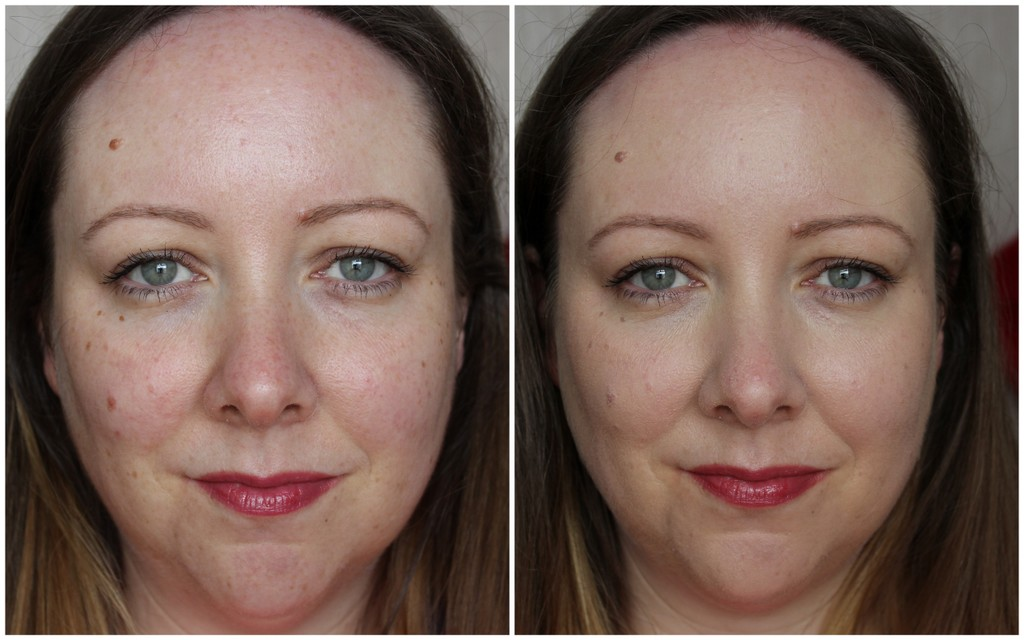 Loreal True Match Foundation Review Before After Photos